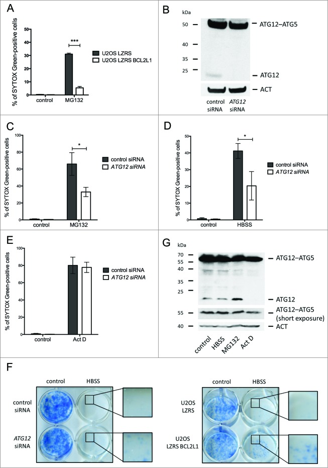 Free ATG12 promotes proteasome inhibitor-mediated cell death ( A ) U2OS cells stably expressing empty vector or BCL2L1 were treated with MG132 and cell viability was determined by SYTOX Green staining using an Incucyte Imager; data represents the mean +/− standard error of the mean (SEM) of 3 experiments at a representative time-point (24 h). ( B ) U2OS cells were assessed for ATG12 expression 2 d post-transfection with control or ATG12 siRNA. Cell viability of control or ATG12 siRNA-transfected U2OS cells, treated with MG132 ( C ) HBSS ( D ) or Act D ( E ) was determined by SYTOX Green staining using an Incucyte Imager; representative time-points shown (24 h MG132, 30 h HBSS, 24 h Act D). Graphs represent the mean +/− SEM of 4 experiments. ( F ) U2OS, transfected with control or ATG12 siRNA, or stably expressing vector or BCL2L1 were starved in HBSS. After 48 h of starvation, cells were washed, cultivated for 7 d in DMEM and colonies were stained with methylene blue. ( G ) U2OS cells were treated with HBSS (24 h), MG132 (16 h) or Act D (16 h) and examined for ATG12 expression. In all immunoblots, ACT was used as a loading control.
