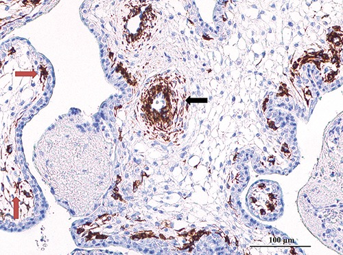 WT1 immunostaining in placenta. WT1 immunoreactivity was restricted to cytoplasm of muscular cells in the arterial wall (black arrow) and star-shaped cells in close relationship with the cytotrophoblast (red arrows).