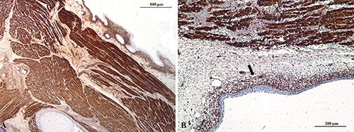 WT1 immunostaining in fetal arts. WT1 cytoplasmic immunoreactivity were observed A) in developing skeletal muscles and B) in the progenitor cells of the developing derma (black arrow).