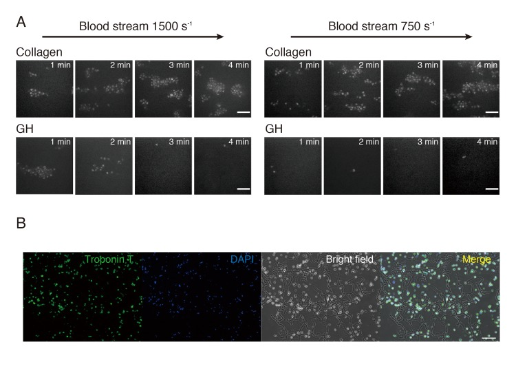 Thrombogenicity and cell adhesion of gelatin hydrogel (GH). (A) Thrombogenicity of gelatin hydrogel (GH) was compared with that of collagen. In a 1500-s -1 blood stream, non-specific aggregation took place in 1 to 2 minutes, but no aggregation was induced after 3 minutes. In a 750-s -1 blood stream, GH induced no aggregation at all. Bars are 10 μm. (B) Cardiomyocytes (CM) were premixed with GH before transplantation. CM were stained with cardiac troponin-T and 4',6-diamidino-2-phenylindole dihydrochloride (DAPI). Most of the CM were entwined with GH, and they were distributed evenly. Bar is 100 μm.