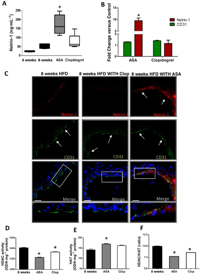 Aspirin (ASA) increases systemic and vascular expression of netrin-1 in ApoE −/− mice. (A) elisa of netrin-1 in plasma, from ApoE − / − mice on 8 week HFD, either untreated (8 weeks; n = 8) or treated with ASA (5 mg·kg − 1 ·day − 1 ; n = 8) or clopidogrel (Clop; 25 mg·kg − 1 ·day − 1 ; n = 8). Also shown in (A) are plasma netrin-1 levels in ApoE − / − mice after 4 weeks of HFD (4 weeks; n = 4) for comparison. (B–C) The micrographs show immunofluorescence staining for netrin-1 (red), the endothelial marker CD31 (green) and nuclei by DAPI (blue) of aortas from ApoE − / − mice after 8 week HFD either untreated (left) or ASA treated (right, ASA 5 mg·kg − 1 ·day − 1 ); magnification = 20× (scale bars = 50 μm). Bottom panels show merging of the three stainings: the white arrows indicate the luminal localization of netrin-1 (red) within the arterial wall and its co-localization with the endothelial cell marker CD31 (green), which is evident in the ASA-treated group but not in either clopidogrel-treated or untreated mice. The graph reports quantification of mean fluorescence intensity for netrin-1 and CD31 in the different groups as specified, and it is reported as fold change versus control (untreated) animals. (D) and (E) report HDAC and HAT activities measured in nuclear extracts isolated from the aortic arterial wall of ApoE − / − mice at the end of the 8 week HFD period, either untreated (8 weeks) or treated with ASA (5 mg·kg − 1 ·day − 1 ) or clopidogrel (25 mg·kg − 1 ·day − 1 ). Also shown in (F) is the HDAC/HAT ratio in the different groups. Data for (A) are shown as median ± interquartile ranges. * P