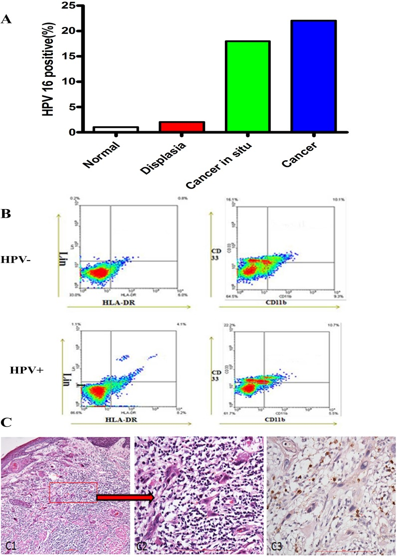 HPV infection correlates with the progression of oropharyngeal carcinogenesis. (A) Percentage of HPV 16 positive infection in patient tissues with normal oral mucosa, dysplasia, cancer in situ and cancer was shown. (B) Representative flow cytometry image of CD11b+ LIN- HLA-DR- CD33+ MDSCs in tissues of OPSCC patients with HPV-negative and HPV-positive. We first examined the percentage of LIN- HLA-DR- cells, and then screened the percentage of CD11b+ CD33+ cells in LIN- HLA-DR- cells. This image showed that the percentage of CD11b+ LIN- HLA-DR- CD33+ MDSCs in HPV-negative and HPV-positive OPSCC patients was 9.39% and 13.81%, respectively. (C) Representative immunohistochemical image (C3) of MPO in cancer tissues of OPSCC patients. C1 and C2 were H E staining and C2 was amplification of C1.