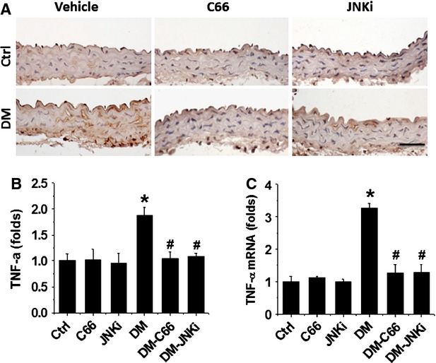 Protective effect of C66 on diabetes-induced aortic tumour necrosis factor-alpha (TNF-α) expression. Aortic expression of TNF-α was examined by immunohistochemical staining for its protein (A) expression in aortic tunica media, followed by semi-quantitative analysis (B) and real-time PCR for its mRNA level (C). Data were presented as means ± SD ( n = 5). * P