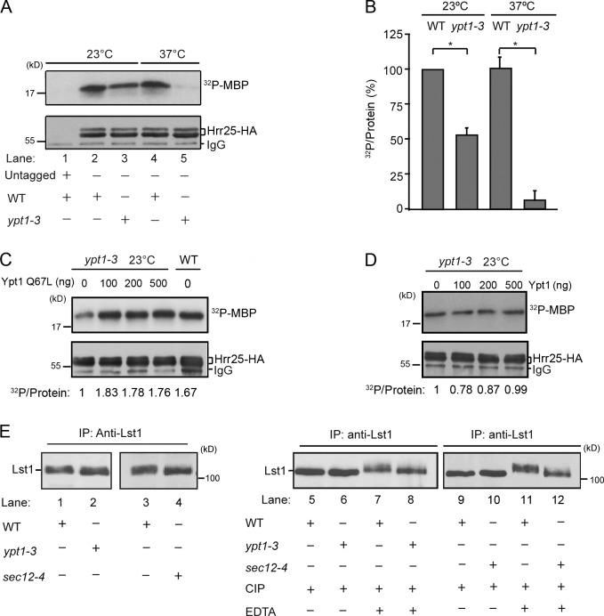 Ypt1 regulates Hrr25 kinase activity on vesicles . (A) Hrr25 kinase activity is ts in the  ypt1-3  mutant. WT (SFNY 2443) and mutant (SFNY 2445) cells were grown at 23°C or shifted to 37°C for 2 h. Hrr25-HA was precipitated from lysates onto Protein A–conjugated agarose beads and kinase activity was assayed using MBP as a substrate as described in the Materials and methods. (B) Quantitation of kinase activity from WT and the  ypt1-3  mutant from three separate experiments. The data were normalized to the amount of Hrr25-HA in the precipitate. Error bars represent SD;  n  = 3; *, P