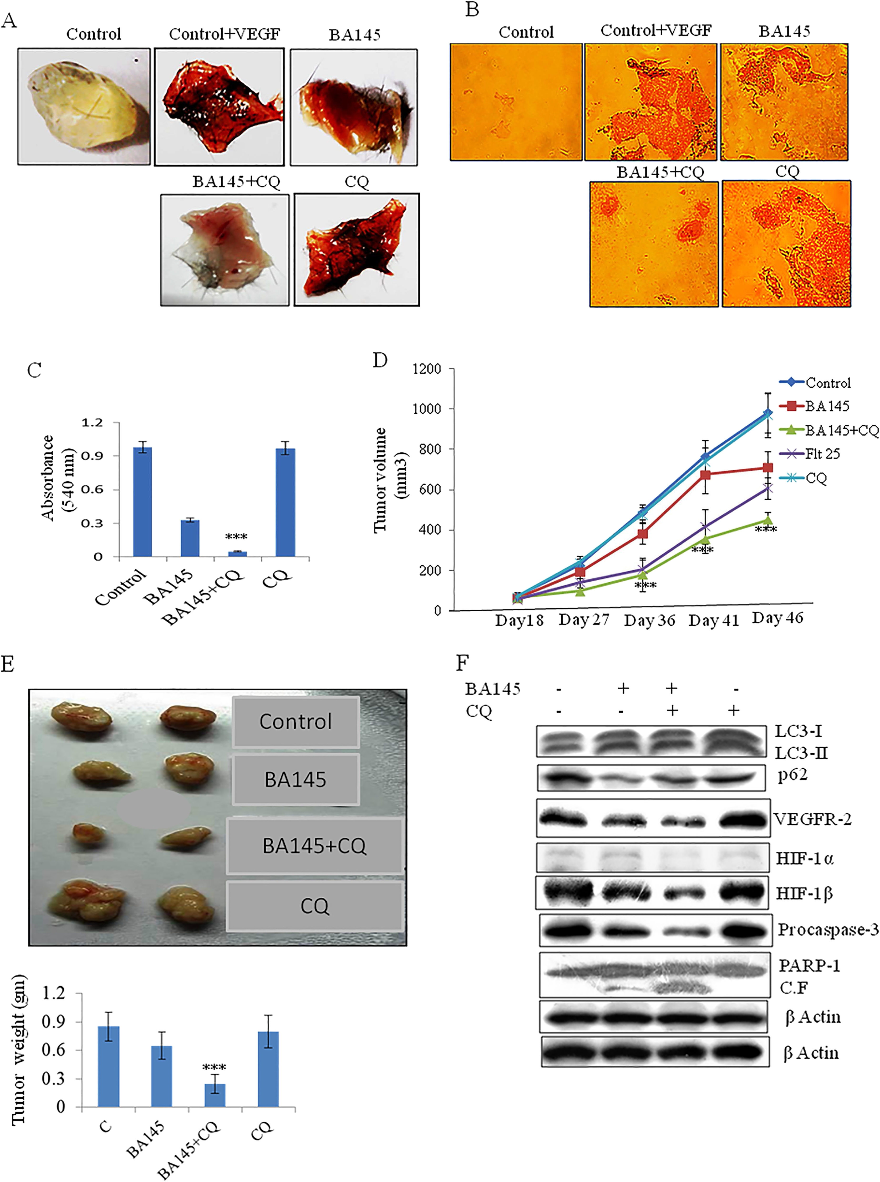 Autophagy inhibition potentiates the anti-angiogenic effects of BA145 in vivo. (A) Effect of BA145 and CQ on VEGF induced angiogenesis. Six weeks old C57BL/6 J mice were injected with Matrigel containing BA145 (50 mg/kg), CQ (50 mg/kg), or both BA145 and CQ along with VEGF (150 ng) into the ventral area (6 mice per group). Matrigel plugs were monitored 10 days later. (B) Matrigel plugs were fixed, sectioned, and stained with H E. (C) Neovascularization of Matrigel plugs were quantified with Drabkin's reagent using a spectrophometer. (D) Effect of BA145 and CQ on tumor growth in vivo. PC-3 M-luc2 cells implanted into NOD.SCID mice were treated with vehicle, BA145 (75 mg/kg), BA145 (75 mg/kg) plus CQ (50 mg/kg), positive control flutamide (25 mg/kg), and CQ (50 mg/kg) on alternate days for 28 days. Tumor volumes are reported as mean ± SE. (E) Representative pictures of excised tumors and their mass. (F) Western blot analysis of the indicated proteins in tumor tissues. β actin was used as loading control. Columns, mean; bars, SD; with ***p