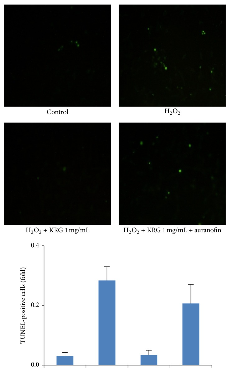 Terminal transferase <t>dUTP</t> nick end labeling <t>(TUNEL)</t> assay of TrxR1 inhibition in KRG-stimulated HUVECs. KRG 1 mg/mL treated HUVECs were pretreated for 1 h with or without 2 μ M auranofin, followed 1 h by treatment with 100 μ M H 2 O 2 . After 18 h of incubation, the protective effect of KRG on H 2 O 2 -induced cell death in HUVECs and its blockage by the TrxR1 inhibitor, auranofin, were determined by the TUNEL assay DAPI, 4′,6-diamidino-2-phenylindole.
