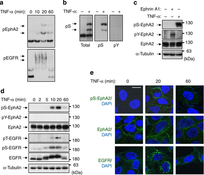 Phosphorylation of EphA2 at Ser-897 is induced by TNF-α stimulation. ( a ) Whole-cell lysates from HeLa cells treated with TNF-α (20 ng ml −1 ) for 10, 20 and 60 min were separated by Zn 2+ -Phos-tag SDS–PAGE and immunoblotted with anti-EphA2 and EGFR antibodies. ( b ) Whole-cell lysates from HeLa cells treated with TNF-α for 20 min were separated by Zn 2+ -Phos-tag SDS–PAGE and immunoblotted with anti-EphA2, pS-EphA2 and pY-EphA2. ( c ) Whole-cell lysates from HeLa cells treated with ephrin-A1 (100 ng ml −1 ) for 10 min or TNF-α for 20 min were separated by normal SDS–PAGE and immunoblotted with anti-pS-EphA2, pY-EphA2, EphA2 and α-tubulin antibodies. ( d ) HeLa cells were stimulated with TNF-α for the indicated periods. Whole-cell lysates were electrophoresed and probed with primary antibodies against pS-EphA2, pY-EphA2, EphA2, pT-EGFR, pS-EGFR, EGFR and α-tubulin. ( e ) HeLa cells were stimulated with TNF-α for 20 and 60 min. After fixation and permeabilization, cells were immunofluorescently stained with pS-EphA2, EphA2 or EGFR (clone LA1). Scale bar, 20 μm. Shown are representative images from three independent experiments.