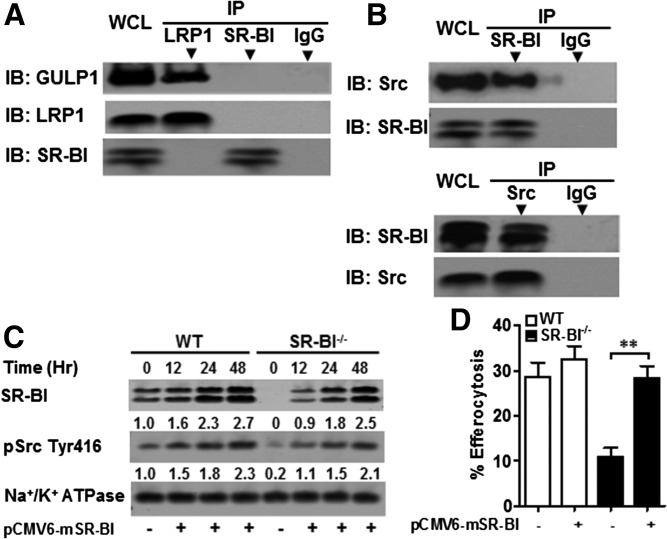 SR-BI interacts with Src in macrophages, inducing Src phosphorylation and membrane recruitment of Src. A: WT macrophage cell lysates were immunoprecipitated with either anti-SR-BI or anti-LRP1 antibodies and protein A/G magnetic beads. Immunoprecipitated GULP or SR-BI as a control was then detected by Western blotting. B: WT macrophage cell lysates were immunoprecipitated with either anti-SR-BI or anti-Src antibodies and protein A/G magnetic beads. Immunoprecipitated Src or SR-BI was then detected by Western blotting. C: SR-BI plasmid was transfected for the indicated times into WT or SR-BI −/− macrophages using <t>Lipofectamine</t> <t>LTX</t> and Plus reagent. Plasma membrane proteins were isolated as described in the Materials and Methods and the SR-BI, pSrc (Tyr 416), and Na + /K + ATPase levels were detected by Western blotting. D: Efferocytosis was measured by flow cytometry from WT and SR-BI −/− macrophages transfected with pCMV6-mSR-BI plasmid or sham as described in the Materials and Methods. A–C: Data are representative of three experiments.