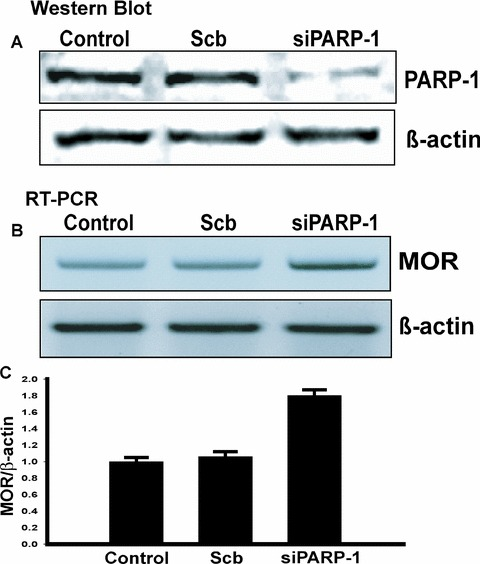 Analysis of mouse MOR gene regulation by PARP-1 in vivo using siRNA. PARP-1 siRNA increases MOR transcription in NS20Y cells. (A) NS20Y cells were trans-fected with either scrambled siRNA (Scb) or PARP-1 siRNA (siPARP-1). Whole-cell extracts were made after incubation with the siRNAs for 48 hrs. Immunoblot analyses for PARP-1 and β-actin were performed. This figure is a representative of three separate experiments. (B) Quantification of MOR transcripts was performed by RT-PCR. Total RNA from NS20Y cells was prepared and treated with DNase I, and primer pairs specific for the coding sequence of each gene were used for RT-PCR. (C) Quantitative analysis using ImageQuant 5.2 software. The MOR mRNA levels from Control, scrambled (Scb) or siRNA-treated (siPARP-1) cells were normalized against β-actin levels. The values were obtained from triplicate data points and changes in transcript levels for Scb or siPARP-1-treated samples were compared to Control, which was assigned a value of 1.0. Bars indicate the range of standard error.