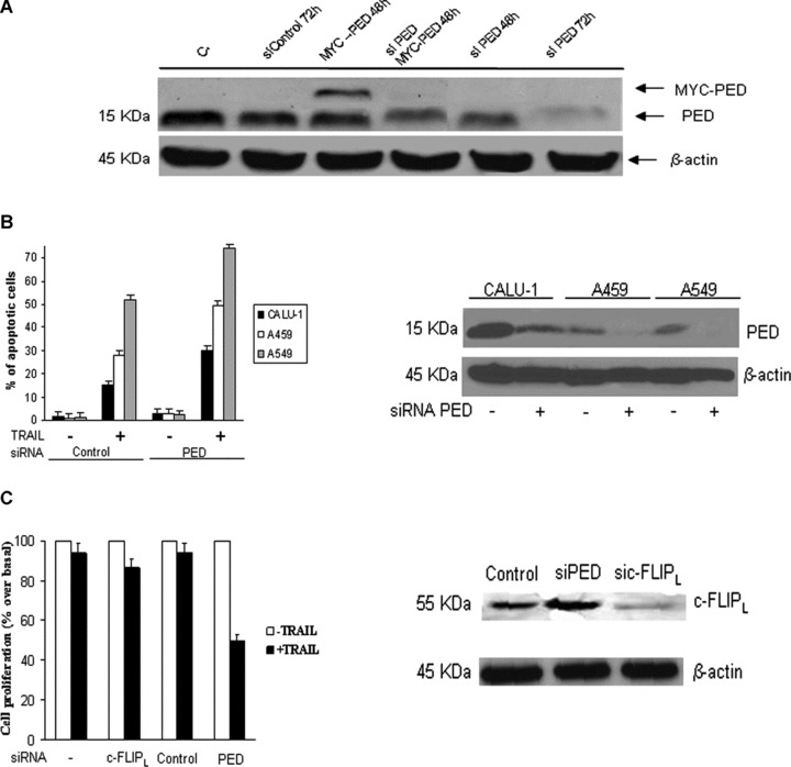 Down-regulation of PED restores TRAIL sensitivity in CALU-1 cells. (A) PED siRNA or a control oligo were transiently transfected in CALU-1 cells in the presence or absence of PED-Myc cDNA. Cells were incubated for 48 or 72 hrs and analysed by Western blotting. The PED siRNA duplex suppressed both exogenous and endogenous PED expression, whereas control siRNA had no effects. (B) PED siRNA effects in A459 and A549 cells. PEDsi RNA, transfected in NSCLC cells was able to reduce PED expression levels (right panel) and induce an increase in TRAIL sensitivity (left panel), as assessed by flow cytometry. Mean ± SD of two independent experiments in duplicate. (C) c-FLIPL siRNA or PED siRNA were transfected as described in Methods. Cells were analysed for c-FLIP expression after 72 hrs incubation. c-FLIPL siRNA but not PED siRNA was able to reduce c-FLIPL expression Effects of silencing PED and c-FLIPL on TRAIL-induced cell death: CALU-1 cells were transfected with siRNA for PED, c-FLIPL or control for 48 hrs, after which cells were trypsinized, plated in 96-well plates in triplicate and further incubated with superkiller TRAIL for 24 hrs. Metabolically active cells were then detected as indicated in the Methods. Mean ± SD of four independent experiments in duplicate. Down-regulation of PED, but not cFLIPL, was responsible for increased sensitivity of CALU-1 cells to TRAIL-mediated cell death.