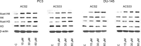 Western blot analysis of H3 and H4 histone expression (total and acetylated) in ACS-treated- and non-treated cells. DU-145 or PC3 cells were incubated with ACS2 or ACS33 for 24 hrs. Cell lysates were then analysed by specific antibodies as listed in materials and methods. β-actin served as the internal control. One representative experiment of three is shown.