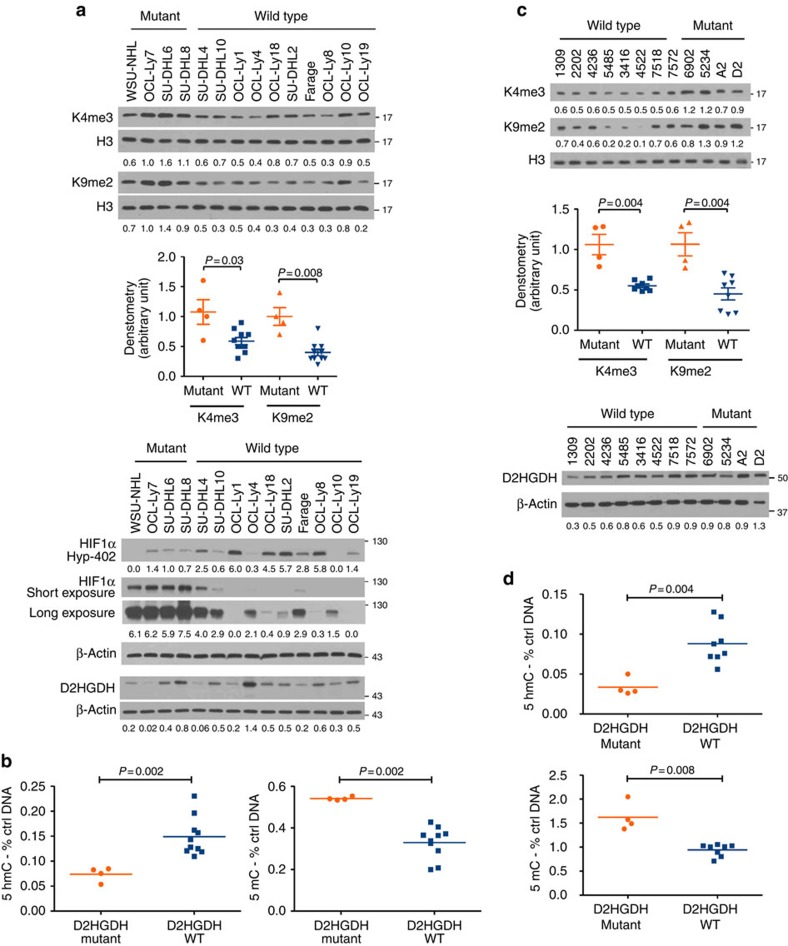Cellular effects of D2HGDH mutations in DLBCL. ( a ) Methylation of H3 lysine residues and HIF1α hydroxylation/total levels (under hypoxic conditions) were determined by western blot in 14 DLBCL cell lines. H3K4 and K9 methylation were higher, while HIF1α hydroxylation (Hy-HIF1α) was lower (and its total levels consequently higher) in D2HGDH-mutant cell lines when compared with those expressing the WT enzyme. Densitometric quantifications are shown at the bottom of the western blots, and for H3K4me3 and H3K9me2 also in graphic display (mean and s.e.m., Mann–Whitney test). The WB at the bottom displays the expression of D2HGDH across these cell lines. ( b ) The levels of 5hmC (left) and the 5mC (right) were significantly lower and higher, respectively, in DLBCL cell lines expressing a mutant D2HGDH gene than in the WT cells ( P =0.002, two-tailed Mann–Whitney test). The data shown are mean of 3 data points for each cell line (four mutant and ten WT) derived from three independent biological replicates. ( c ) Western blot analysis of 12 primary DLBCLs (four mutant and eight D2HGDH WT) shows higher H3K4 and H3K9 methylation in mutant lymphomas. Densitometric quantification of H3K4me3 and H3K9me2 (normalized by total H3) is shown below the blots and in graphic display (mean and s.e.m., Mann–Whitney test). The WB at the bottom shows the expression of D2HGDH across these biopsies. ( d ) The levels of 5hmC (top) and 5Mc marks (bottom) were significantly lower and higher, respectively, in DLBCLs expressing a mutant D2HGDH gene than in the WT tumours ( P =0.004 or 0.008, two-tailed Mann–Whitney test). The data shown are mean of three independent measurements for each tumour.
