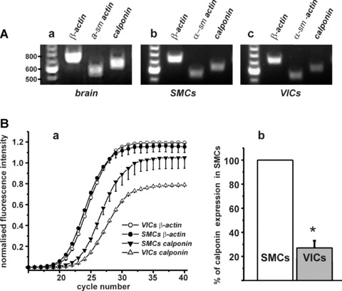 Analysis of gene expression of contractile proteins in isolated SMCs and VICs from RMCAs. (A) Primers for α-SM-actin (product size 550 bp) and calponin (product size 633 bp) were tested on rat brain tissue by RT-PCR (a); RT-PCR showed that both SMCs (b) and VICs (c) express α-SM-actin and calponin. As a positive control primers for β-actin (721 bp) were also used. (B) (a) Real-time RT-PCR amplification graph shows a plot of number of cycles versus fluorescence for the genes calponin and β-actin for VICs and SMCs. The fluorescence data are baseline-corrected, normalized and averaged. Whereas there was no significant difference in β-actin expression between VICs and SMCs, there was a clear difference between VICs and SMCs for calponin. (b) VICs expression of calponin was 27 ± 5% ( n = 4, P