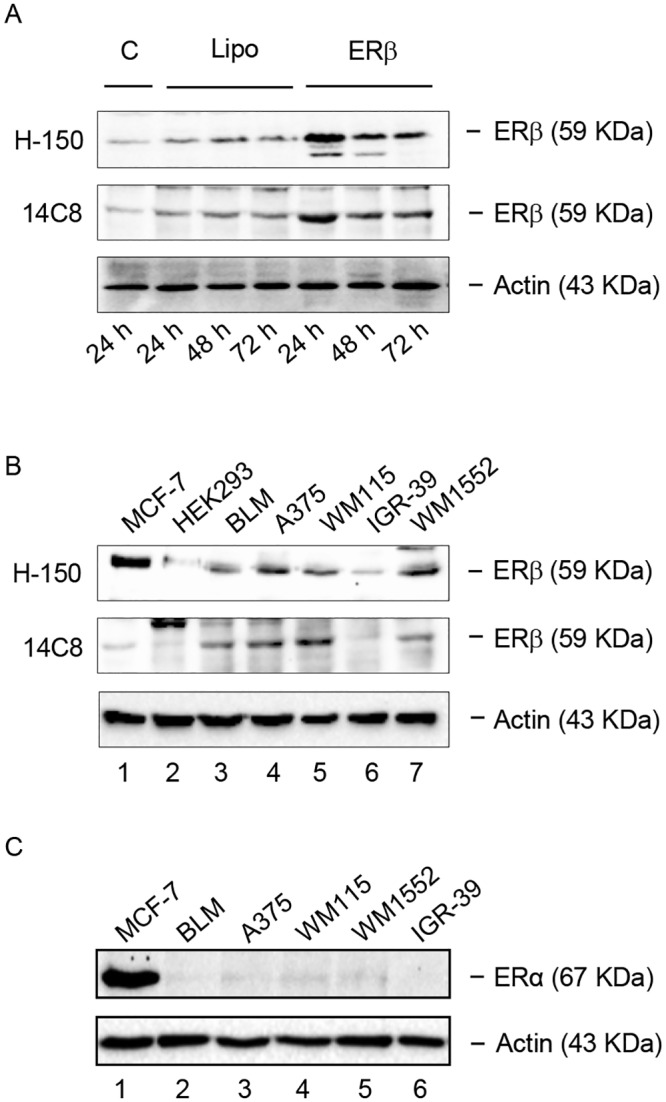 ERβ, but not ERα, is expressed in human melanoma cells. (A) As a positive control, the expression of ERβ was evaluated by Western blot analysis in human BLM melanoma cells engineered to overexpress the receptor subtype protein, utilizing two primary antibodies: H-150 (Santa Cruz) and 14C8 (Abcam). A band corresponding to the receptor protein (59 kDa) was detected in basal conditions, both in control (C) and in Lipofectamine (Lipo) treated BLM cells. As expected, the intensity of this band was found to be significantly increased after ERβ overexpression (24–72 h), with the highest level of expression at 24 h. (B) By Western blot analysis, utilizing the two primary antibodies H-150 and 14C8, ERβ was found to be expressed at high levels in human BLM, A375, WM115, WM1552 melanoma cell lines (lanes 3, 4, 5, 7), while the human IGR-39 melanoma cell line expressed the receptor at almost undetectable levels (lane 6). ERβ was also expressed in human MCF-7 breast cancer cells, utilized as a positive control (lane 1), but it was not expressed in the human HEK293, utilized as a negative control. (C) On the other hand, all the human melanoma cells lines tested (lanes 2–6) did not express the ERα receptor isoform, which was expressed only in the control cell line (MCF-7, lane 1). β-actin was utilized as a loading control. For each analysis, one representative of three different experiments, which gave similar results, is shown.