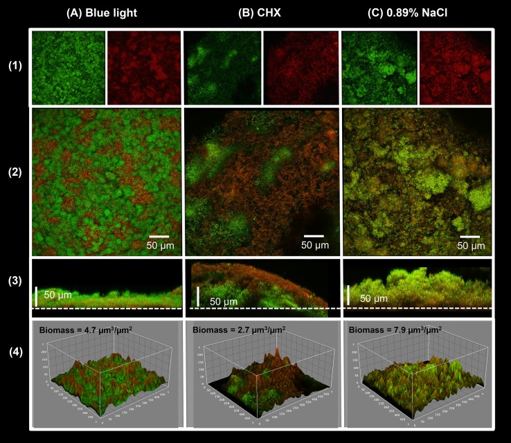 Viability and spatial arrangement in the S . mutans biofilms showed by confocal laser scanning microscopy. Five (5) day-old biofilms were stained with BacLight LIVE/DEAD and processed for CSLM. (A) Biofilm after the twice-daily blue light treatment during 5 days. (B) Biofilm after twice-daily treatment with 0.12% Chlorhexidine (positive control). (C) Biofilm after twice-daily treatment with 0.89% NaCl (negative control). (1) Red cells are considered dead and green cells are alive. (2) Overlap of live and dead stacks. (3) Orthogonal view of the overlap of live and dead stacks; dots line represents the interface biofilm/ HA substrate. (4) Representative three-dimensional images of the structural organization of the biofilms: rendered images of the outer layers of biofilms. The total bacterial biomasses calculated by COMSTAT are shown.