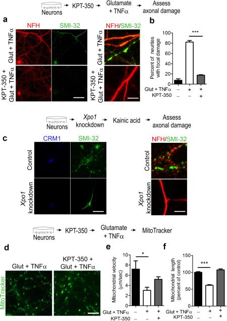 Treatment of cultured neurons with KPT-350 or knockdown of CRM1 prevents the induction of focal axonal damage and prevents damage in models independent of inflammation ( a ). Representative low and high magnification images of rat hippocampal neurons treated with glutamate (50 μM) and TNFα (200 ng/mL) for 4 hr and stained with <t>neurofilament</t> NFH (red) to identify neuronal processes and SMI-32 (green) to detect damaged neurons with localized swellings. Scale bar = 25μm for low magnification and 15 μm for high magnification ( b ) Quantification of focal axonal damage expressed as percentage of neuronal processes with beading as shown in ( a ), n = 10 neurites per field, 10 fields per experiment, three independent biological replicates. ( c ) Representative confocal images of neurons infected with either control or Xpo1 knockdown lentiviral particles. Xpo1 knockdown was confirmed by staining for CRM1 (blue). Focal axonal damage was evaluated by staining neuronal cultures with neurofilament NFH (red) to identify neuronal processes and SMI-32 (green) to detect damaged neurites in neuronal cultures treated kainic acid. Scale bar = 25 μm for low magnification and 5 μm for high magnification ( d ) Representative still images of mitochondria from videos of cultured neurons stained with the live MitoTracker® Green FM dye; scale bar = 25 μm. ( e ) Quantification of mitochondrial velocity from ( d ), n = > 10 mitochondria per condition in three independent biological replicates. ( f ) Quantification of mitochondrial length from ( d ), n = 150 mitochondria per condition, from three independent experiments. Bar graphs represent mean pixel intensity ± SEM. Statistical significance in: ( b ) was determined using one-way ANOVA with Tukey's test (***p