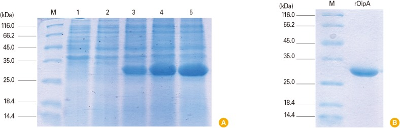 Detection and purification of expressed OipA. (A) OipA was detected by sodium dodecyl sulfate polyacrylamide gel electrophoresis (SDS-PAGE). Lane M: low molecular weight standard protein size marker (kDa); lane 1: non-induced OipA; lane 2, 3, 4, and 5: induced OipA with 1 <t>mmol/L</t> <t>IPTG</t> at t = 0, 1, 2, and 3 hr, respectively. 30-kD band were detected in induced lanes. T = 3 hr was the best time for induction. (B) Purified OipA was detected using SDS-PAGE. Lane M: low molecular weight standard protein size marker (kDa); lane 1: 30-kD band was detected as purified OipA.