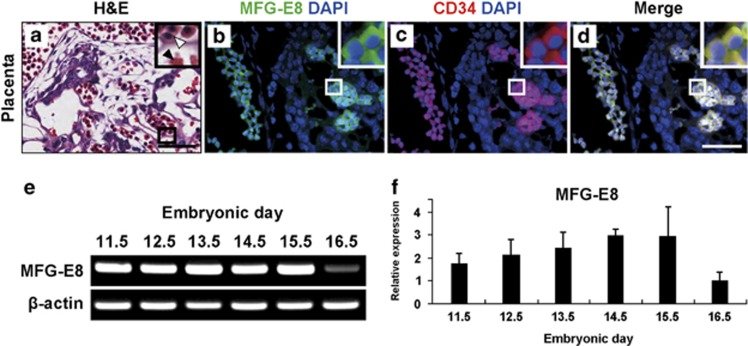 Expression of milk fat globule-EGF-factor 8 (MFG-E8) in placental development during pregnancy. ( a – d ) Hematoxylin and eosin (H E) staining and immunofluorescent labeling of the developing placenta with anti-CD34 and anti-MFG-E8 antibodies at embryonic day (E)11.5. High magnification images of the boxed areas are shown in the upper right corner of each panels. Scale bar: 50 μm. ( e ) real-time reverse transcription-polymerase chain reaction <t>(RT-PCR)</t> analysis of MFG-E8 mRNA in the placenta at different days of gestation. ( f ) quantitative PCR (qPCR) analysis of MFG-E8 mRNA in the placenta at different days of gestation. The expression level was presented as relative expressions (fold changes) over the lowest value (the lowest level was assigned a value of 1) after normalization to β-actin expression.