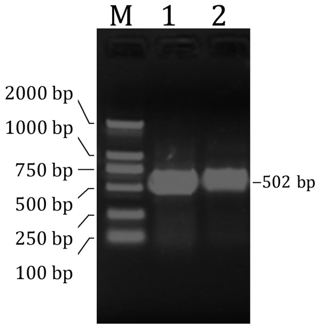 <t>PCR</t> amplified object fragment. The agarose gel electrophoresis revealed that the object band was in the expected position. M, DL2000 DNA marker; 1 and 2, PCR product (502 bp) <t>cDNA.</t> PCR, polymerase chain reaction.