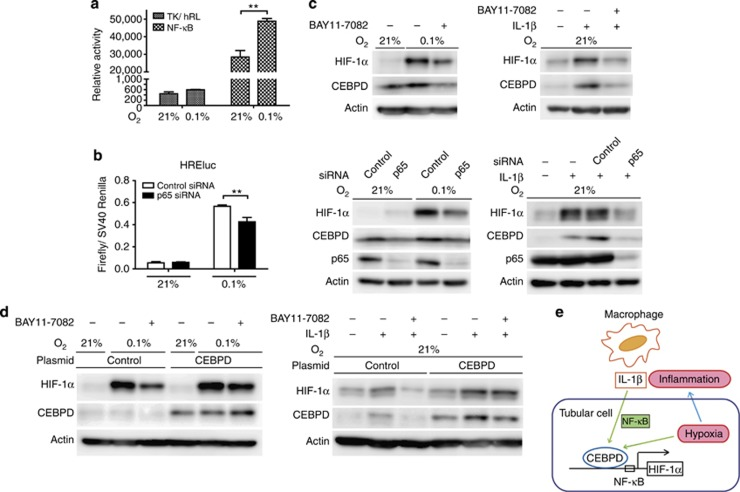 The nuclear factor (NF)-κB pathway regulates the CCAAT/enhancer-binding protein δ/hypoxia-inducible factor 1 (CEBPD/HIF-1) pathway under hypoxia or interleukin (IL)-1β treatment. ( a ) NF-κB reporter activity was measured under normoxia or hypoxia. The pRL-TK vector served as a control. Hypoxia (0.1% O 2 , 6 h) increased NF-κB activity in HK-2 cells. ( b ) Inhibition of the NF-κB pathway by p65 knockdown significantly decreased HREluc activity under hypoxia in HK-2 cells. ( c ) (Upper panel) HK-2 cells were pretreated with BAY11-7082 (IKK inhibitor, 10 μ M ) or dimethyl sulfoxide (for control) for 30 min and then treated with hypoxia (upper left panel) or IL-1β (1 ng/ml; upper right panel) for 6 h. CEBPD and HIF-1α protein induction under both conditions were inhibited. The same phenomena were observed using small interfering RNA (siRNA) against p65-mediated NF-κB inhibition (lower left panel for hypoxia and lower right panel for IL-1β). ( d ) Human CEBPD stable overexpression HK-2 clones were generated using a retroviral system. Upon NF-κB inhibition by BAY11-7082 (10 μ M ), HIF-1α protein induction under hypoxia (left panel) or IL-1β (1 ng/ml; right panel) was reduced in control HK-2 cells. In stable CEBPD-expressed HK-2 cells, the HIF-1α protein induction was restored under both conditions, indicating the necessity for HIF-1α protein regulation by CEBPD. The endogenous CEBPD protein is hardly detected, because exposure time was optimized for the overexpressed protein. Bar graph (mean±s.e.m. or representative of at least three independent experiments) statistics performed using two-way analysis of variance with Bonferroni's post-hoc tests. ** P