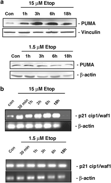 Etoposide effect on p53-mediated transcriptional events. a MEFs were treated with 15 µM of etoposide ( upper panel ) or 1.5 µM of etoposide ( lower panel ) for 1, 3, 6 or 18 h. Total cell proteins were probed with anti-PUMA antibody. Vinculin or actin was used as the loading control. b MEFS were treated with 15 µM of etoposide ( upper panel ) or 1.5 µM of etoposide ( lower panel ) for 30 min, 1, 3, 6 or 18 h. Total RNA was isolated and reverse transcribed into cDNA. The expression of p21 CIP1/WAF1 was determined by RT-PCR using specific primers. β-actin was used a loading control. Figures are representative of three independent experiments.