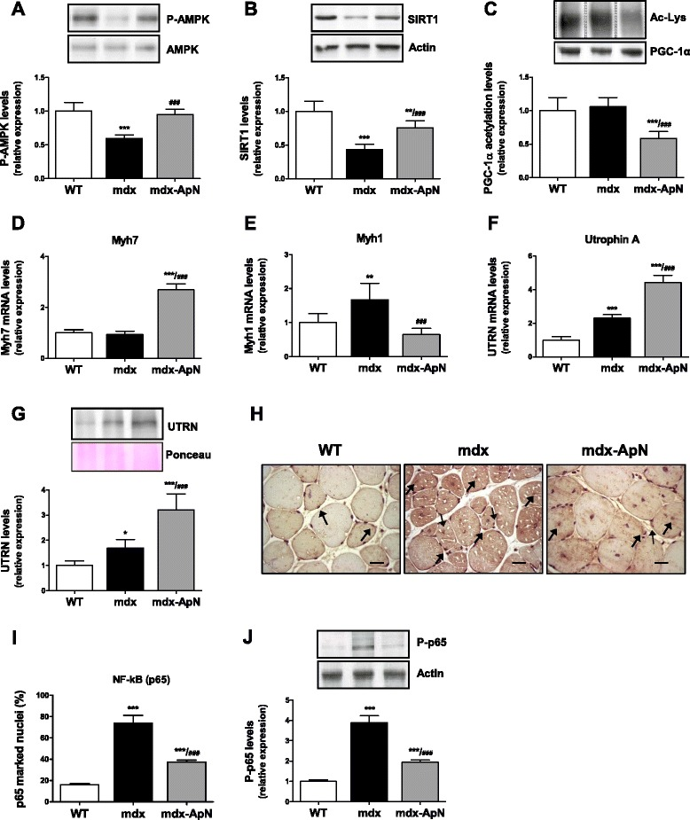Effects of adiponectin on AMPK signaling pathway and NF-κB activity in tibialis anterior muscles of mdx mice. The expression of P-AMPK (phosphorylated form) ( a ) and SIRT1 ( b ) was analyzed by Western blotting in muscles from the three groups of mice. c Densitometry of immunoprecipitation experiments performed on skeletal muscle lysates, using anti-PGC-1α antibody for precipitation and anti-acetyl-lysine antibody for immunoblotting. d mRNA levels of Myh7, a marker of slow twitch, oxidative myofibers. e mRNA levels of Myh1, a marker of fast twitch, glycolytic myofibers. f mRNA and g protein levels of utrophin A (UTRN) with a representative Western blot and Ponceau S stain. h Immunodetection of NF-κB (p65) in tibialis anterior sections; some positive marked nuclei ( brown color) are indicated by arrows . Scale bar = 25 μm. i Quantification of p65 immunolabeling in myofiber nuclei (expressed as percent of total nuclei) in sections (as those shown in g ). j Immunoblotting of phosphorylated NF-κB p65 in the same muscles. Levels of P-AMPK, SIRT1, and Acetyl-Lys were normalized to AMPK, actin, and PGC-1α levels, respectively. mRNA levels were normalized to cyclophilin, utrophin A protein levels to Ponceau, and P-p65 to Actin. The subsequent ratios were presented as relative expression compared to WT values. Results are means ± SD; n = 6 mice per group. * p