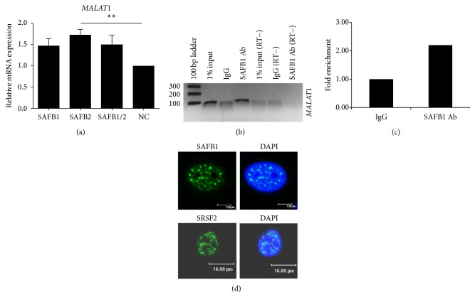 SAFB2 regulates expression of MALAT-1 . (a) Expression of MALAT-1 was measured by qRT-PCR using RNA from MCF-7 and MDA-MB-231 cells transfected with negative, SAFB1, SAFB2 or SAFB1 and SAFB2 siRNA using validated TaqMan probes specifically targeting MALAT-1. Data represents the average of three biological replicates ± SD. Repeated Measures ANOVA with Dunnett's Multiple Comparison Test statistical significance of mRNA expression was calculated using Student's t -test; P