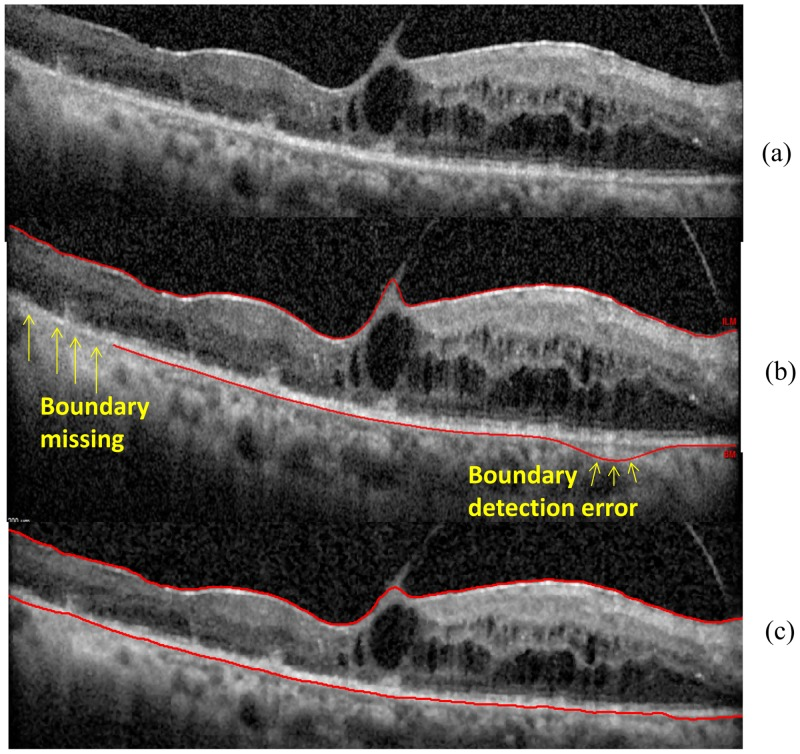 Algorithms performance in the B-scan obtained from the patient with diabetic macular edema. (a) The raw OCT B-scan. (b) The boundaries delineated by the built-in Spectralis SD-OCT software for the ILM and RPE-CH. The yellow arrows are indicating the boundary detection errors by the built-in software of the Spectralis device. (c) The boundaries delineated by OCTRIMA 3D for the ILM and the RPE-CH.