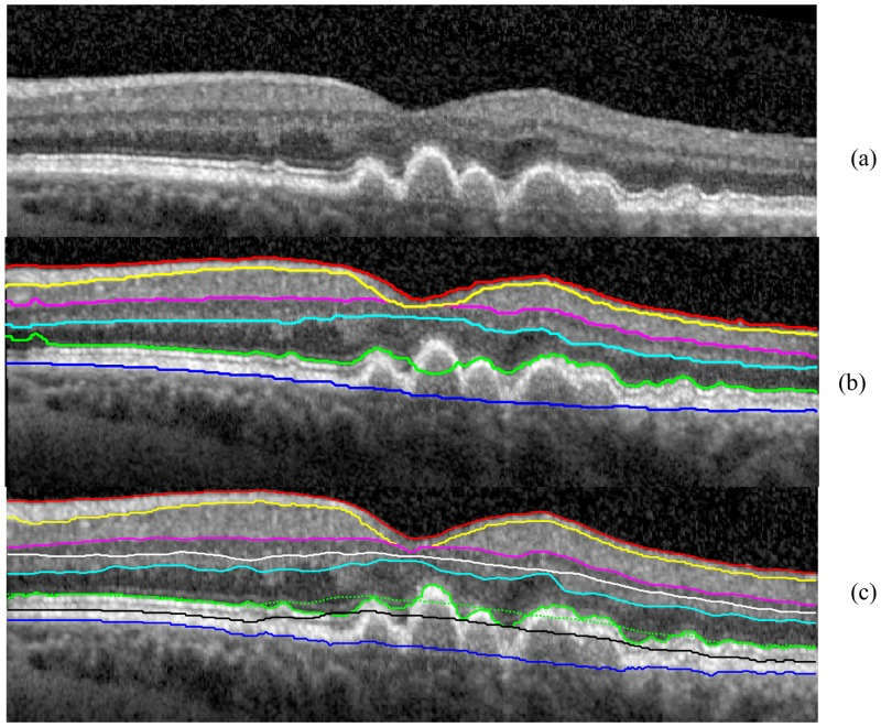 The segmentation results obtained for the B-scan in the eye with dry age-related macular degeneration using Dufour's software and the OCTRIMA 3D algorithm. The legend of the boundaries is the same as Fig 1 . (a) THe raw OCT B-scan. (b) The segmentation result of Dufour's software. The IS-OS delineation failed at the left most and center area of the B-scan. (c) The initial segmentation results of OCTRIMA 3D detected retinal boundaries reliably except for the IS-OS in the drusen area (green doted line). By adjusting the flattening step, the IS-OS is delineated correctly (green solid line).
