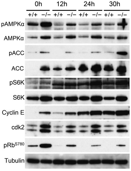 Loss of G0S2 deregulates activation of AMPK and mTOR pathways in CD8 + T cells CD8 + T cells from wild type and G0s2 −/− mice were activated by plate-bound anti-CD23 and anti-CD28 for 12, 24, and 30 hours. Immunoblot analysis of AMPKα (AMP-activated protein kinase α), ACC (Acetyl-CoA carboxylase), S6K (ribosomal protein S6 kinase), Cyclin E, cdk2, phospho-Rb (Ser 780), and tubulin is shown. Data represent three independent experiments.