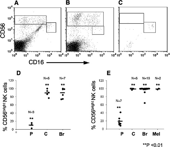 CD56 bright CD16 dim natural killers subset are highly enriched within melanoma, breast and colon tumors Lymphocytes were isolated from tumor tissues by mechanical dissociation and enzymatic digestion and were then immunostained, as above. CD16 versus CD56 expression of CD3 − -gated lymphocytes is shown. Representative samples demonstrating the enrichment of CD56 bright CD16 dim NK subset in breast (A) , colon (B) but not in Non-small cell lung carcinoma (C ; n = 4) tissues. The mean frequencies of CD56 bright CD16 dim cells out of total NK cell numbers in lymphocytes isolated either mechanically (D) or by IL-2 culturing (E) from various tumors. In comparison the percentage of CD56 bright CD16 dim cells in PBMC (D) or IL-2-treated PBMC (E), is shown. (P), PBMC; (C), colon; (Br) breast; and (Mel) Melanoma tumors. ** p