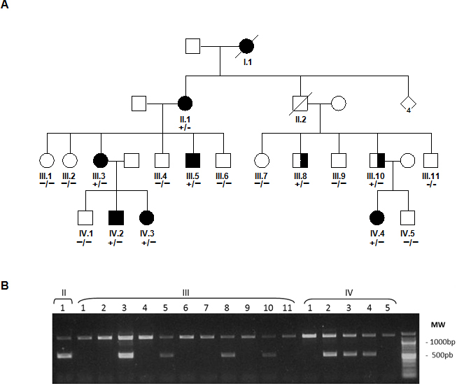 Pedigree and gel electrophoresis analysis of family RPT65. A : Pedigree of the adRP family RPT65, which carries the genetic variant c.307G > (p.Gly103Arg) causing the COL6A6 /827-bp deletion (g.9281_10108del) in RHO . The genetic varian in COL6A6 was detected by capillary Sanger sequencing and fluorescence resonance energy transfer (FRET) assay, with (+) indicating the presence of genetic variants and (−) indicating wild-type alleles. Squares and circles represent men and women, respectively. The open symbols represent unaffected family members. Completely filled symbols represent patients with retinitis pigmentosa who underwent ophthalmic examination before genetic variant analysis was performed. Semifilled symbols represent carriers of the genetic variants who were not clinically diagnosed with RP before the molecular analysis. Ophthalmic examination of III:8 and III:10 showed a RP phenotype. B : Gel electrophoresis of the PCR products obtained by amplification of genomic DNA from the family members showing the deletion (g.9281_10108del) in RHO.