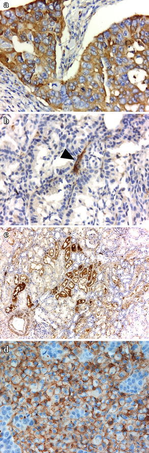 "Immunohistochemical staining of vasopressin receptors. V2R expression was detected using polyclonal antibodies against the human receptor, as described in detail in "" Patients and methods "". Representative pictures of tumor sections from patients enrolled in the trial and positive control tissue are depicted. a Breast carcinoma expressing V2R b V2R-negative breast carcinoma c Kidney tubules d MCF-7 human breast carcinoma xenograft. Arrowhead denotes positive staining of small vessels. Original magnification: a , b , d ×400; c ×100."