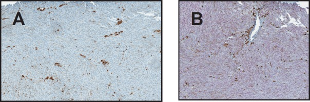 (A) Negative HMB-45 in a case of uveal melanoma (B) SOX-10 showing diffuse strong positivity of the same case. (original magnification X400 A B).