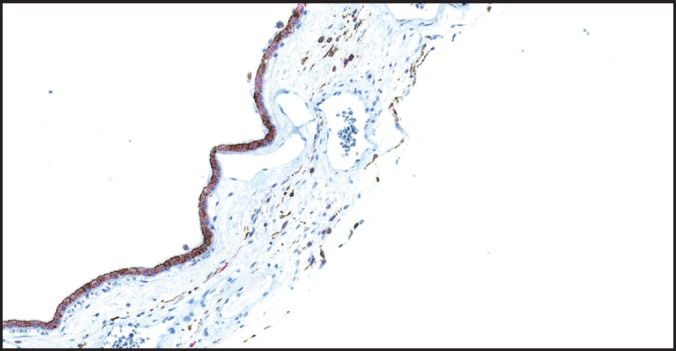<t>HMB-45</t> staining RPE cells and scattered melanocytes in the uninvolved choroid (original magnification X400).