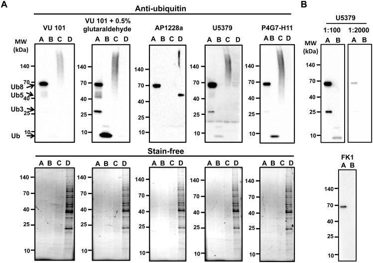 Validation of <t>anti-ubiquitin</t> antibodies. VU101 in the presence and absence of 0.5% glutaraldehyde pre-treatment, U5379, AP1228a, or P4G7-H11 were used to detect ubiquitin and ubiquitinated proteins. A) Western blot of polyubiquitin chains (Ub3, Ub5, Ub8) (lane A), purified ubiquitin (lane B), polyubiquitinated proteins from H9c2 cells treated with 10μM MG-132 for 36 h obtained from affinity purification using TUBEs (lane C), and unbound fraction from H9c2 cells after removal of polyubiquitinated proteins (lane D). B) Upper figure, Western blot of free ubiquitin (lane A) and polyubiquitin chains (lane B) with U5379 antibody diluted at 1:100 and 1:2000. Lower figure, Western blot of free ubiquitin (lane A) and polyubiquitin chains (lane B) with FK1 antibody diluted at 1:1000 in BSA. Even when the blots were imaged for long time periods no additional bands were seen.