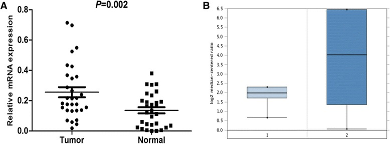 DDR1 expression is increased in PDAC at mRNA level. a increased DDR1 mRNA expression in 30 matched tumor (T) and non-tumor tissue (N) was detected by real-time quantitative PCR. b DDR1 expression in Buchholz pancreas grouped by normal pancreatic duct (1) and PDAC (2)