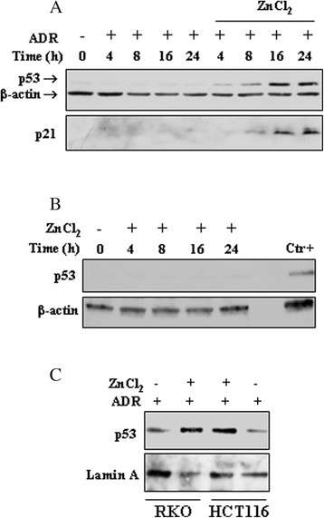 ZnCl 2 induces p53 nuclear accumulation and activation in the presence of low-dose ADR. ( a ) HCT116 were treated with low-dose ADR (0.1 μg/ml) in the presence or absence of ZnCl 2 (100 μM), for 4-8-16-24 h. Equal amounts of total cell lysates were subjected to immunoblot analysis for the detection of the expression levels of p53 and p21. Anti-β-actin was used as protein loading control. The samples derive from the same experiment and gels/blots were processed in parallel. One representative set of blot from three independent experiments, all generating similar results, is shown here. ( b ) RKO were treated with ZnCl 2 (100 μM), for 4-8-16-24 h and the expression levels of p53 was detected by western blotting. A positive control for p53 expression in the same cells, is included (ADR 2 μg/ml for 16 h). Anti-β-actin was used as protein loading control. ( c ) RKO and HCT116 were treated with low-dose ADR (0.1 μg/ml) in the presence or absence of ZnCl 2 (100 μM), 8 h. Equal amounts of nuclear extracts were separated by SDS-PAGE and p53 levels detected by western blotting. Anti-Lamin A was used as protein loading control. The gels have been run under the same experimental conditions and one representative set of blot from three independent experiments, all generating similar results, is shown here