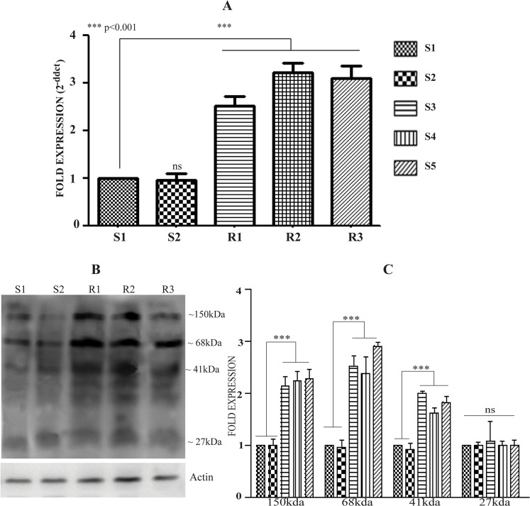 Differential expression of LdCLrP in clinical isolates. (A) Expression analysis of CLrP in different clinical isolates by qRT-PCR. The data are presented as the mean ± SD of three independent RNA preparations. (Asterisks denote highly significant differences from S1) (B) Differential expression pattern of CLrP in different isolates by Western blot of WCL of L . donovani . Actin served as an internal loading control (C) Fold expression of CLrP in different clinical isolates (densitometric analysis of three different western blots with three independent sample preparations).