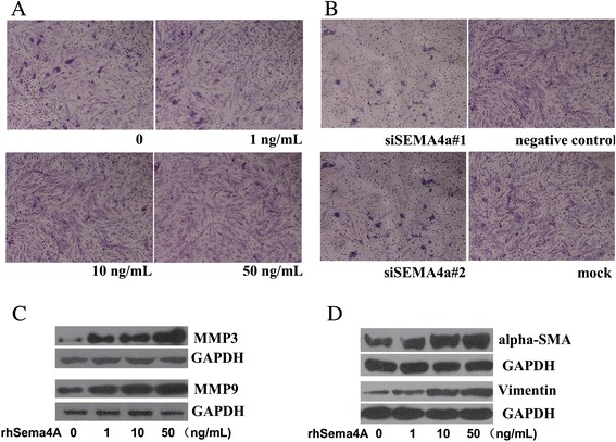 Semaphorin 4A ( Sema4A ) regulates the invasive phenotype of synovial fibroblasts of rheumatoid arthritis (RASFs). The invasive ability of RASFs as investigated by transwell apparatus after recombinant human semaphorin 4A ( rhSema4A ) ( a ) or silencing Sema4A ( b ) treatment, which were depicted in × 100 magnification. Western blot was applied to detect the expression of matrix metalloproteinase ( MMP )3 and MMP9 ( c ), as well as alpha smooth actin ( α-SMA ) and vimentin ( d ) in RASFs after rhSema4A treatment at different concentrations. GAPDH glyceraldehyde-3-phosphate dehydrogenase