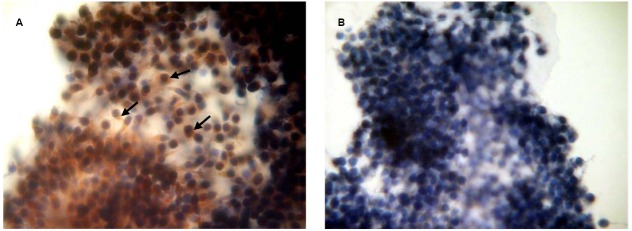 Immunocytochemical detection of PRL receptors in cumulus cells after 20 h maturation of bovine cumulus-enclosed oocytes. Specific localizations were detected by MA1-610 antibody and the red <t>3-amino-9-ethylcarbazole</t> (AEC) chromophore. Nuclei were counterstained with hematoxylin. (A) Positive staining. Black arrows indicate PRL receptor-specific immunoreaction. (B) Negative control performed by omitting the primary antibody. Original magnification: × 400.