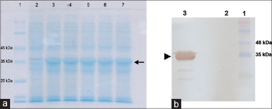 SDS-PAGE (a) and western blot (b) analyses of the recombinant BirA protein expressed via pET24-BirA vector in <t>BL21</t> E. coli cells by addition of IPTG to the final concentration of 1 mM. (a) Lane 1: Protein molecular weight marker (Unstained protein molecular weight marker, Fermentas, Lithuania). Different induced colonies (lane 3–7) showed the same size of BirA (36.6 kDa) expression compared with un-induced sample (lane 2) (b) Western blot analysis of recombinant BirA protein by anti-His antibody specific for C-terminal polyhistidine tag indicated the specific 36.6 kDa protein band. Lane 1: Protein marker (PrestainedProtein Ladder, CinnaGen, Iran) Lane 2: Un-induced bacterial lysate. Lane 3: Recombinant BirA protein (36.6 kDa). Arrows indicate the target protein bands