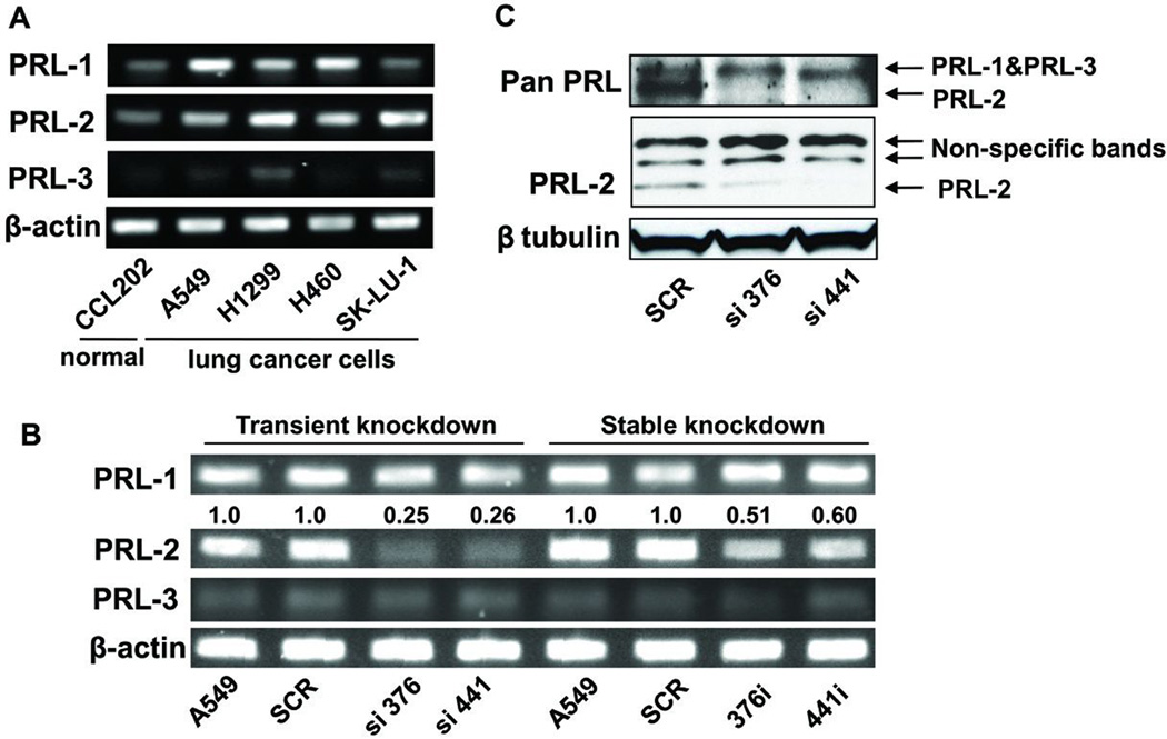 PRL-2 mRNA and protein levels were significantly suppressed in the PRL-2 knockdown cells The cell clone numbers 376 and 441 indicate the starting nucleotide number of siRNA- or shRNA-targeting sequences of PRL-2 mRNA. <t>RT-PCR</t> and Western blotting images were processed and quantified with Fuji Multi Gauge software (Fujifilm). A) RT-PCR demonstrated that PRL-2 was over-expressed in several lung cancer cells including A549 cells. β-actin was used as internal control. B) PRL-2 was selectively down-regulated at the mRNA level in cells with transient and stable PRL-2 knockdown. The siRNA transiently transfected cells displayed ~80% decrease in PRL-2 mRNA level, while there was a ~50% decrease in the shRNA transfected stable knockdown cells. β-actin was used as the internal control to determine expression levels. The average fold changes, as shown above the blot, were calculated from <t>three</t> independent experiments and normalized to relative PRL-2 levels in the parental A549 cells. C) PRL-2 protein level was selectively down-regulated. The upper blot was obtained with an antibody from R D Systems (MAB32191) that recognizes all three PRL proteins and the middle blot was produced with a PRL-2 specific polyclonal antibody from Bethyl (BL1205). β tubulin was used as an internal control.