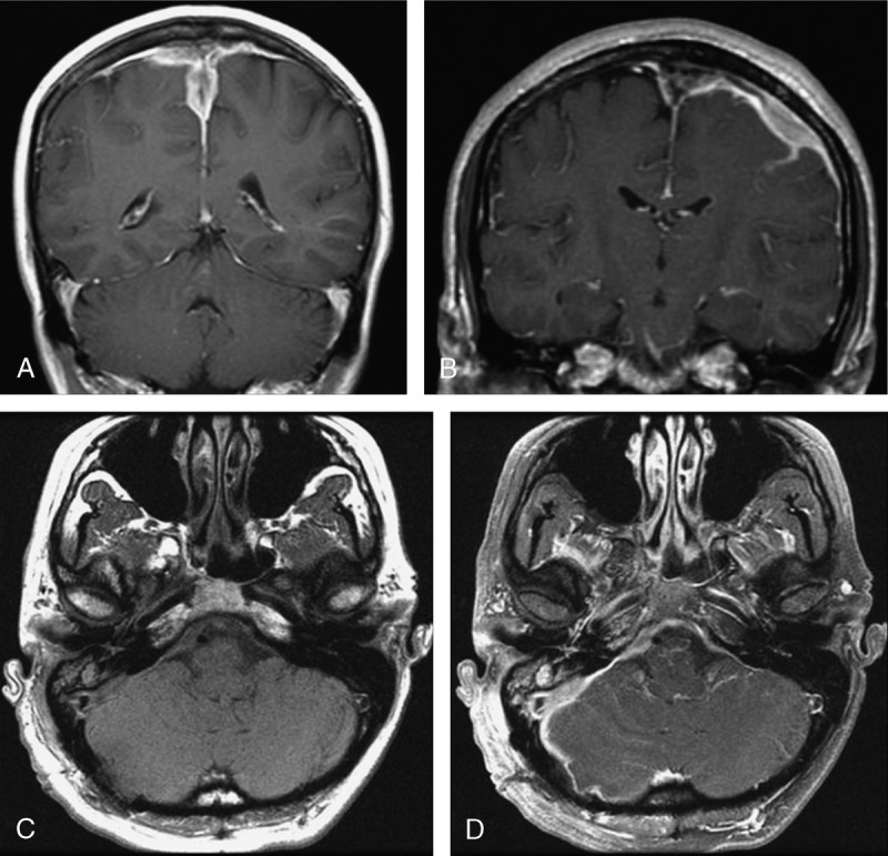 MRI findings of IgG4-related pachymeningitis. A. (Case 1) Coronal T1 postgadolinium image with lobulated expansile lesions of the falx and parafalcine dura with areas of mass effect on the brain. B. (Case 3) Coronal T1 postgadolinium image shows left cerebral convexity lepto- and pachymeningitis. C and D. (Case 2) Axial T1 pre- and postgadolinium images disclosing right-sided pachymeningitis involving the tentorium and posterior fossa with areas of right cerebellar leptomeningeal enhancement adjacent to right mastoid air cells enhancement.