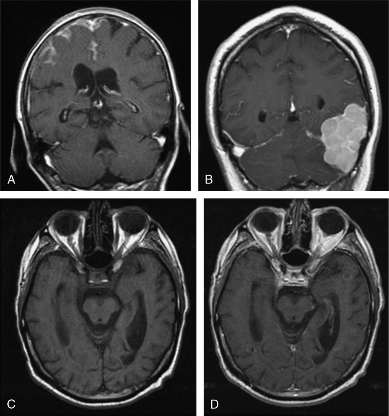 MRI findings of non-IgG4-related pachymeningitis. A. Rheumatoid arthritis-associated pachy- and leptomeningitis: coronal T1 postgadolinium MRI showing left frontal and falcine pachymeningeal enhancement with prominent leptomeningeal enhancement in the left frontal lobe and bilateral medial frontal lobes. B. (Case 11) Lymphoma: coronal T1 postgadolinium MRI shows a multilobulated extraaxial 3.4 × 5.7 × 6.0 cm homogenously enhancing mass arising from the tentorium and causing mass effect on the left temp/parieto-occipital junction and left cerebellum. C and D. (Case 10) Neurosarcoidosis: axial T1 MRIs before (C) and after (D) administration of gadolinium MRI performed 1 year after initial symptoms show supra-sellar, cavernous sinus, and clival enhancement.