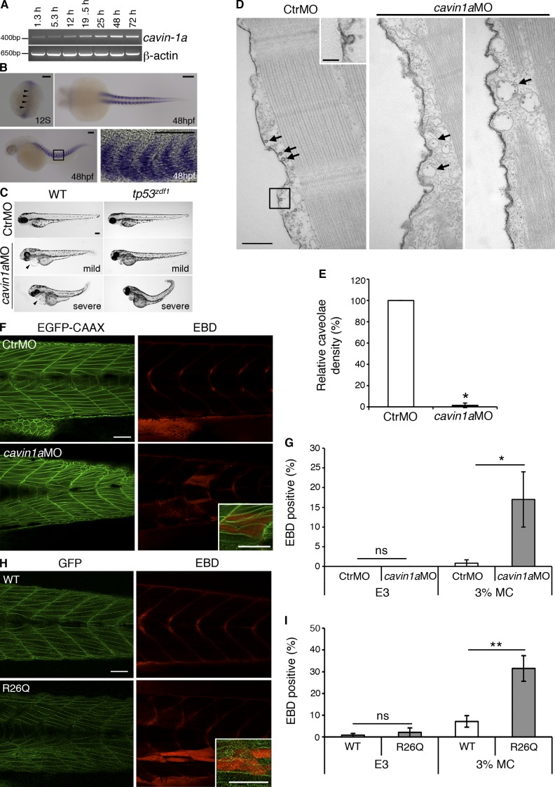 Caveolae are essential for maintaining muscle integrity in the zebrafish. (A) Temporal expression of cavin-1a mRNA in 1.3–72-hpf zebrafish embryos. (B) Expression pattern of cavin-1a in zebrafish embryos using whole-mount mRNA in situ hybridization. Dorsal view of a 12-somite (12S) embryo shows faint labeling for cavin-1a (arrowheads). At 48 hpf, cavin-1a expression is observed exclusively within the zebrafish myotomes, shown here in dorsal (top right) and lateral (bottom left) view; anterior to left in both images. Note the lack of notochord labeling in the dorsal view. Image in bottom right represents magnification of boxed area. (C) WT and tp53 zdf1 zebrafish embryos were injected with control or cavin1a MO (CtrMO and cavin1a MO, respectively) and abnormal morphants (classified as mild or severe) imaged at 72 hpf. Arrowheads indicate cardiac edema. (D) Ruthenium red–labeled isolated muscle fibers from control MO and cavin1a MO embryos. Arrows indicate caveolae (left image) or endosomes (middle and right images). Inset represents boxed area. (E) Relative caveolae density of muscle fibers from cavin1a MO embryos was 1.4 ± 2.0% (means ± SD), compared with muscle fibers from control MO embryos. Quantitation performed on four control MO and six cavin1a MO muscle fibers. (F) EBD uptake in 96 hpf Tg(actb2:EGFP-CAAX) pc10 embryos expressing EGFP-CAAX injected with control MO or cavin1a MO and incubated in 3% MC. Inset shows higher magnification of EGFP-CAAX/EBD-positive muscle fibers. (G) 0.0 ± 0.0% of control MO and cavin1a MO embryos were EBD positive after incubation in E3 (means ± SEM; 28 control MO and 47 cavin1a MO embryos from three separate microinjections). 0.8 ± 0.8% of control MO and 17.0 ± 7.0% of cavin1a MO embryos were EBD positive after incubation in 3% MC (means ± SEM; 105 control MO and 111 cavin1a MO embryos from eight separate microinjections). (H) EBD uptake in 96 hpf embryos expressing Cav3-WT-GFP (WT) or Cav3-R26Q-GFP (R26Q) after incubation in 3% M