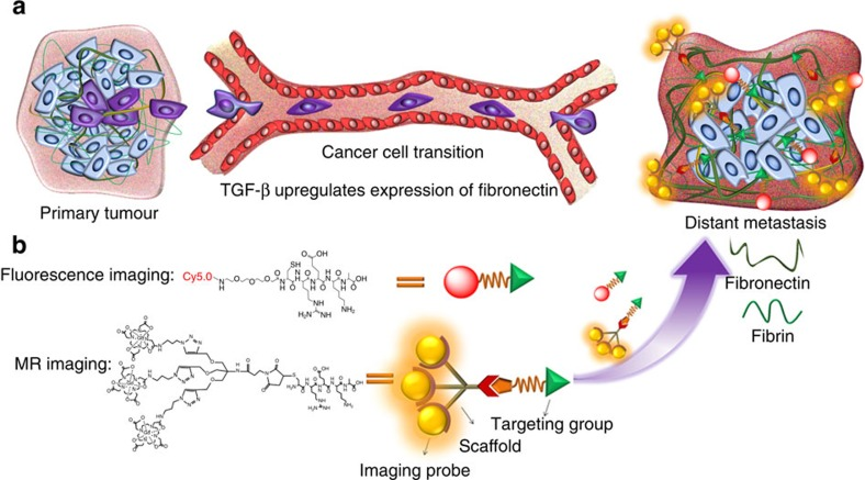 Targeting fibrin–fibronectin complexes for molecular MRI of breast cancer micrometastases. ( a ) Cancer cells from the primary tumour invade into distant organs through epithelial-to-mesenchymal transition (EMT) and transmit signals to prepare 'soil' of 'pre-metastatic niche' for metastases. The expression of fibronectin and its associated complexes, such as the fibrin–fibronectin complex, is upregulated by TGF-β. ( b ) The abundant fibrin–fibronectin complexes in the tumour ECM allow the binding of enough CREKA-Tris(Gd-DOTA) 3 to the ECM marker so as to generate sufficient signal enhancement for effective molecular MRI of small high-risk breast cancer and micrometastases.