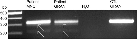 A novel mutation in the ACADM gene results in aberrant splicing. Gel documentation visualizes the PCR product of a region of 323 bp from exon 7 to 9 of the ACADM gene in cDNA of control granulocytes (CTL GRAN) as well as of monocytes (MNC) and granulocytes (GRAN) of patient 1. Arrows point to the additional PCR products that were detected using cDNA of the patient's granulocytes and monocytes. Analysis of the two additional PCR products in the gel eluates of the patient's samples revealed missplicing resulting in either a partial loss of exon 8 (fragment of 294 bp, upper arrowhead) or complete skipping of exon 8 (fragment of 215 bp, lower arrowhead)