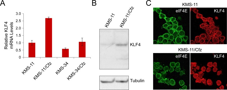 KLF4 expression in KMS-11 and carfilzomib-resistant KMS-11/Cfz cells A. Relative KLF4 mRNA levels as determined by qRT-PCR. Also shown are KLF4 mRNA levels in KMS-34 and KMS-34/Cfz cells relative to KLF4 mRNA levels in KMS-11 cells. B. KLF4 protein levels were detected by western blotting with rabbit anti-KLF4 monoclonal antibodies against the carboxyl terminus (D1F2; Cell Signaling). Representative of four experiments. KLF4 signal in KMS-11 parental cells is less than in KMS-11/Cfz ( P