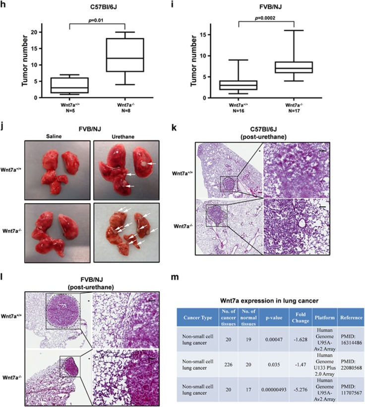 Loss of Wnt7a leads to decrease in lung epithelial cell markers and increased lung tumorigenesis. Representative images of the western blotting analysis of Wnt7a expression in lung lysates derived from wild-type and Wnt7a-null mice either in C57Bl/6J ( a ), or FVB/NJ ( c ) strains. ( b , d , e ) Representative images of the histological sections of the lungs of the indicated genotypes that were stained with hematoxylin and eosin (H E) stain displaying no gross differences in the lung architectures among Wnt7a-null mice and wild-type littermate controls. Scale bar: 100 μm. ( f ) Representative western blotting images of the lung lysates of wild-type ( n =3) and Wnt7a-null mice ( n =3) displaying reduced expression of epithelial cell marker (E-cadherin) and increased expression of mesenchymal cell marker (N-cadherin) in the Wnt7a-null mice. ( g ) Histological sections of the lungs were fixed and stained with either E-cadherin or N-cadherin antibodies, and the expression of E-cadherin and N-cadherin were visualized by indirect immunofluorescence and confocal microscopy. Representative images of Wnt7a-null mice and wild-type littermate controls are displayed in the figure. Scale bar: 10 μm. ( h , i ) Wild-type and Wnt7a-null mice in C57Bl/6J ( h ) or FVB/NJ ( i ) strains were given urethane as described in the Materials and methods section. The mice were later euthanized and dissected to assess lung tumorigenesis. Box plots display the number of lung tumors developed in the wild-type and Wnt7a-null mice in response to urethane. Statistical significance was determined using Mann–Whitney non-parametric test. ( j ) Representative images of the lung tumors from wild-type and Wnt7a-null mice. ( k , l ) Representative images of the histological sections of the lung tissues with tumors stained with H E as detailed in the Materials and methods section. The edges of the tumors were identified with a broken line. Although wild-type mice developed adenomas with soft borders, major